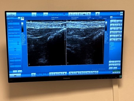 beeldvormende behandeling met echografie